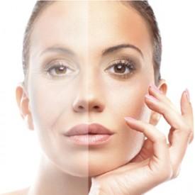 Лазерная шлифовка лица: как проходит процедура, время действия, количество процедур, аппараты