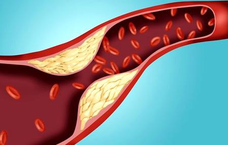Сопутствующие заболевания атеросклероза