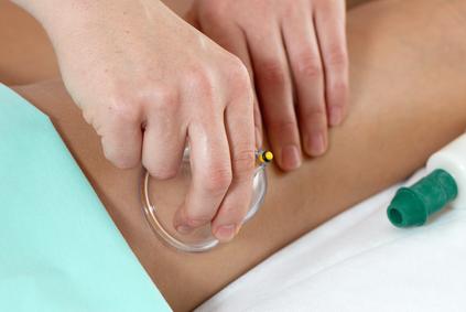 Антицеллюлитный вакуумный баночный массаж