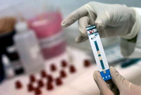 Тест на ВИЧ в домашних условиях: кто в зоне риска, как пользоваться тест-полосками на ВИЧ